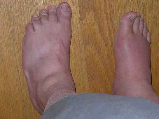 Gut Artriti Şikâyetleri
