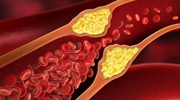 Kolesterolü Düşürmede Ceviz Etkili mi
